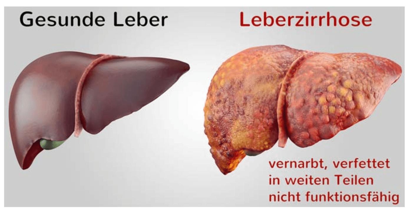 Gesunde und verfettete Leber